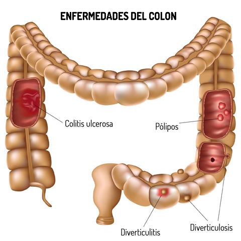 Enfermedad_colon_Duran