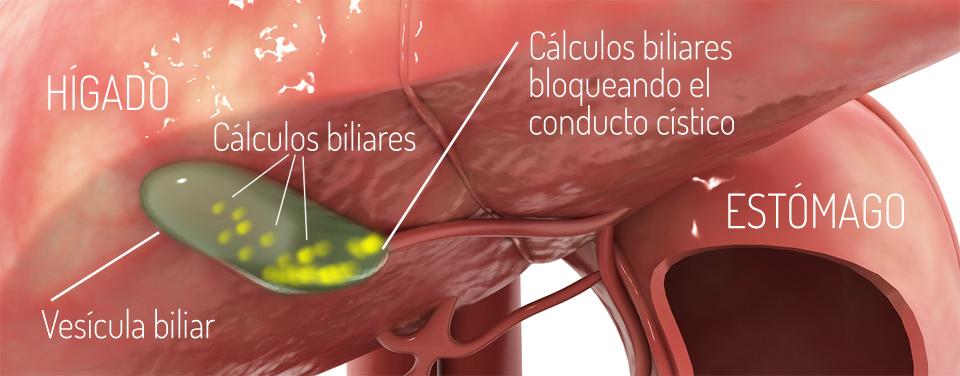 cirugia_vesicula_3_colelitiasis_Dr_Duran