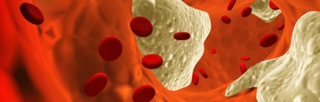La obesidad y el cáncer, una estrecha relación