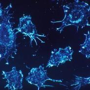 Se confirma la relación entre el cáncer y la obesidad o diabetes