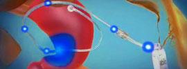 Sistema Abiliti: el marcapasos gástrico
